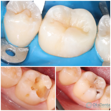 Krūminio danties plombavimas