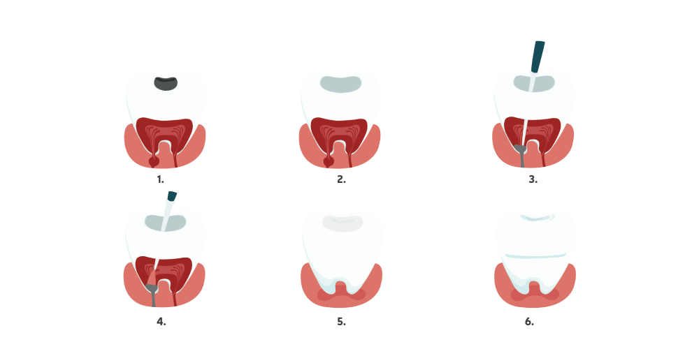 Dantų šaknų kanalų gydymo etapai