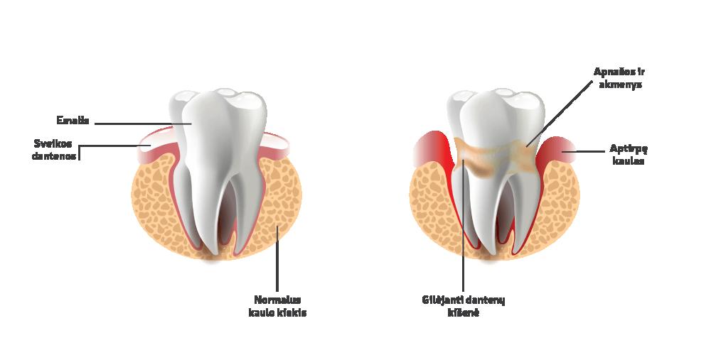 Periodontologinis gydymas - Oksdenta